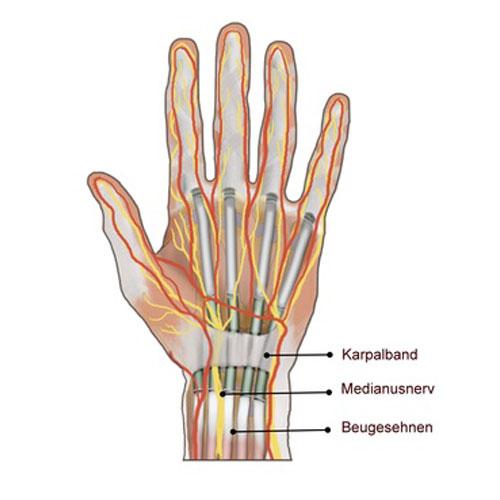 Handchirurgie-in-germering-karpaltunnelsyndrom