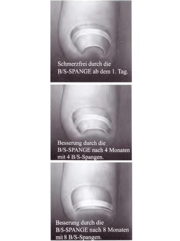 Nagelspange bei eingwachsenem Fußnagel
